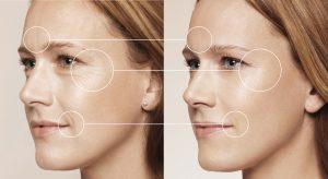 wrinkle-treatments